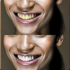 Удаление эффекты желтых зубов